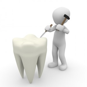 tooth-1015409_960_720